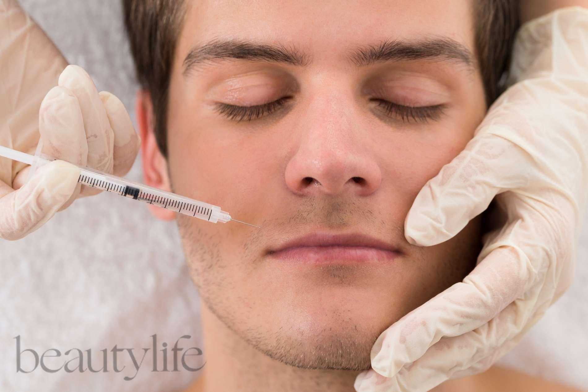 Filler hay Botox