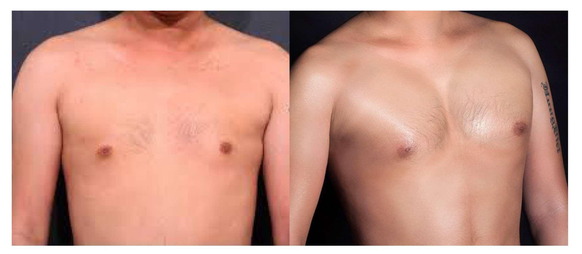 nâng ngực nam
