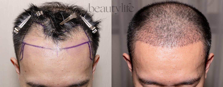 cấy tóc tự thân
